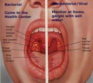cara mengobati panas dan sakit pada tenggorokan